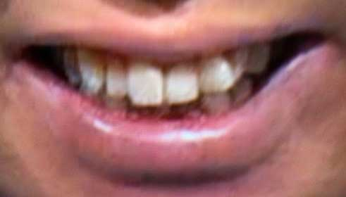 塚地武雅 前歯の写真