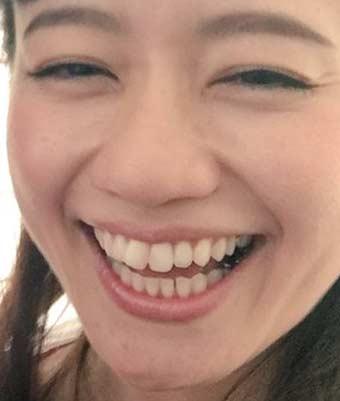 斉藤雪乃 銀歯