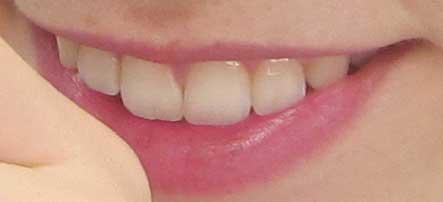 ドーキンズ英里奈 前歯の写真