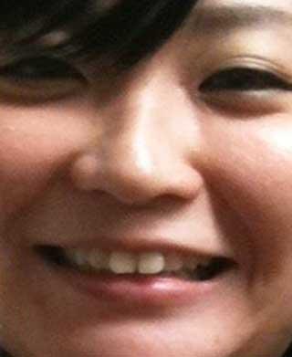 広橋涼 前歯の写真