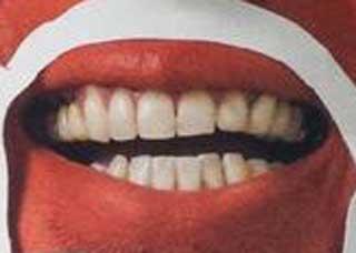 篠原信一 前歯の写真