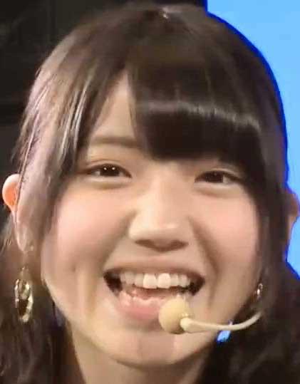 村山彩希 前歯の写真