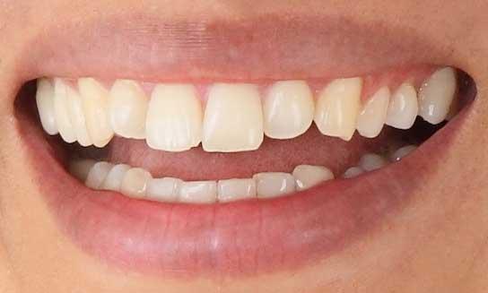 さかなクン 前歯の写真