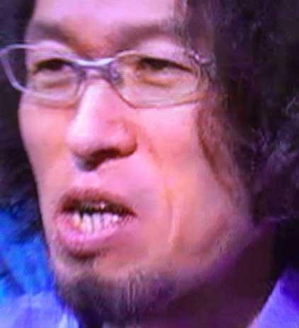 竹内洋岳 歯の写真