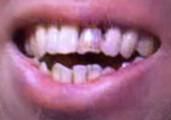 竹内洋岳 変色した歯