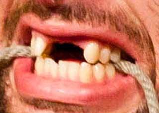 マーク・ブリスコ 前歯の写真