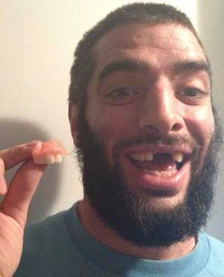 Mark-Briscoe teeth
