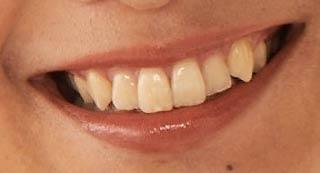 江澤亜弥 前歯の写真