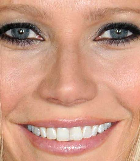 グウィネス・パルトロー 前歯の写真