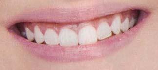 E-girls 前歯の写真
