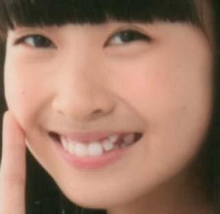 松岡はな 八重歯の画像