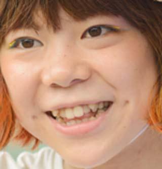 DJみそしるとMCごはん 前歯の写真