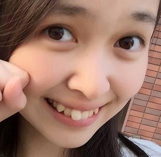 アイドルネッサンス 百岡古宵 歯並び