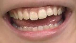 岡本夏美 前歯の写真