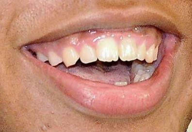 オコエ瑠偉 前歯の写真