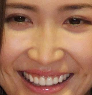 紗栄子 前歯の写真