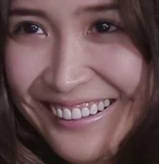 紗栄子 差し歯