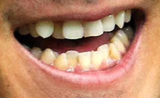 中田翔 前歯の写真