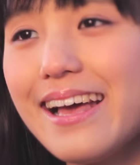 田崎あさひ 歯