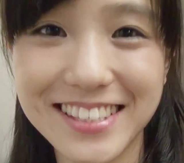 田崎あさひ 前歯の写真