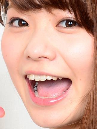 上間江望 銀歯