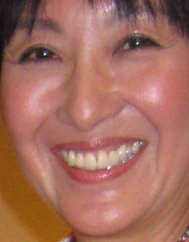 吉川美代子 前歯の写真
