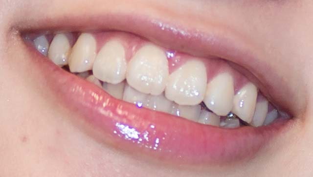 倉持由香 前歯の写真