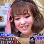 平松可奈子さんの前歯や歯並び(八重歯)