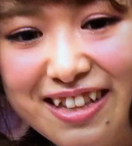 平松可奈子 前歯の写真