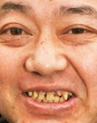 野村貴仁 歯