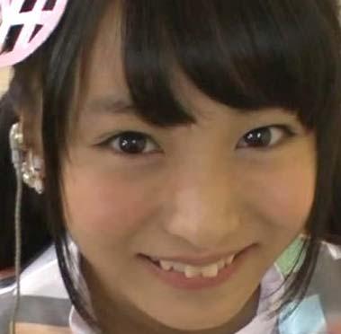 坂口渚沙 矯正前の前歯の写真