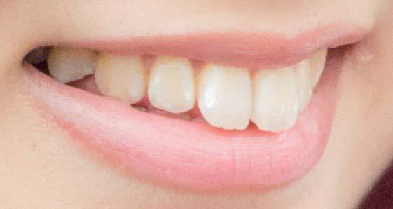 清水麻璃亜 前歯の写真