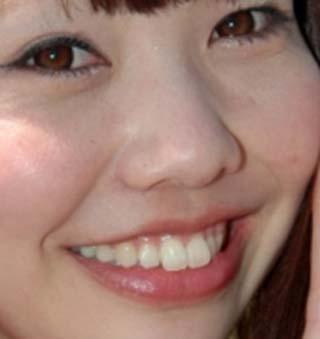 遠藤萌 ビーバー歯