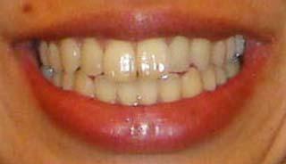 福士加代子 前歯の写真