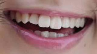 平手友梨奈 前歯の写真