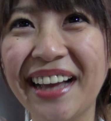 広瀬麻知子 前歯