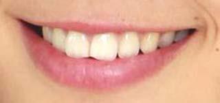 稲村亜美 前歯の写真