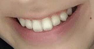 金子栞 前歯の写真