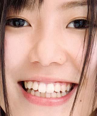 金子栞 歯