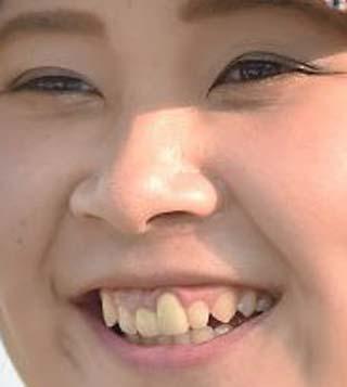 河野美桜 前歯の写真