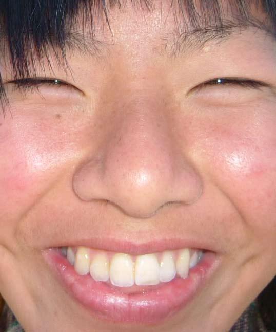 新谷仁美 17歳 鼻毛