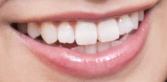 桜井玲香 歯並びの写真