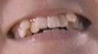 SU-METAL 歯並びの写真