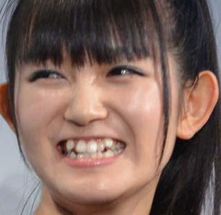 SU-METAL 前歯