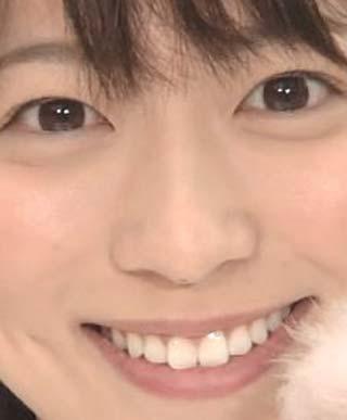 阿部華也子 前歯の写真