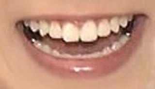 阿部華也子 歯並び 銀歯