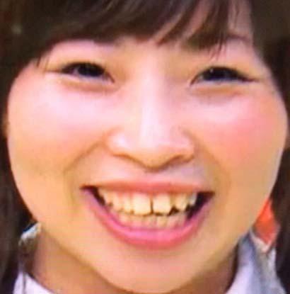 石出奈々子 前歯の写真