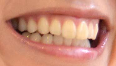 鈴木亜美 歯並びの写真