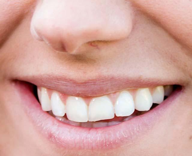 アレックス・モーガン 前歯の写真