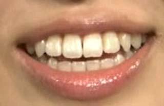 伊藤かりん 前歯の写真